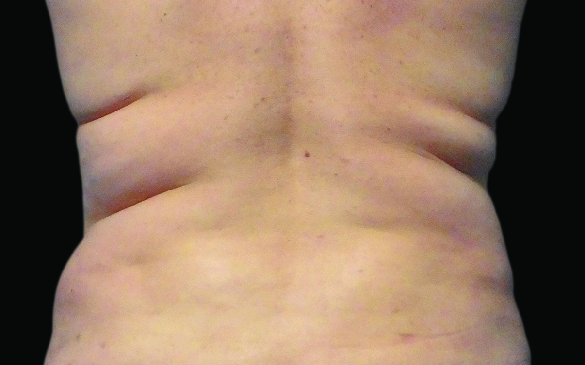109-Female-Abdomen-DrBowes-Medium.jpg_0006_Before.jpg