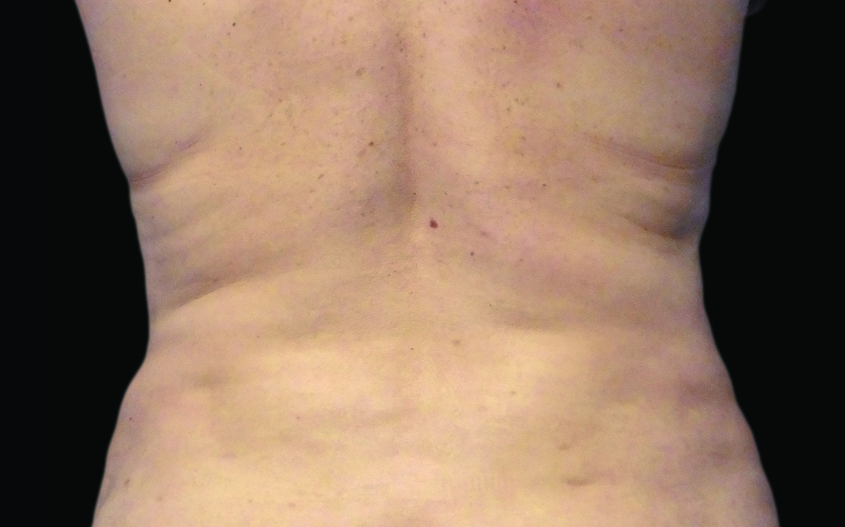 109-Female-Abdomen-DrBowes-Medium.jpg_0007_After.jpg